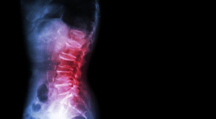 Anterolisthesis